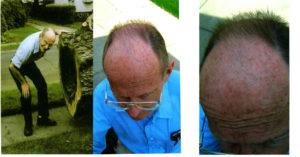 John Ellis water Re-Grows Hair